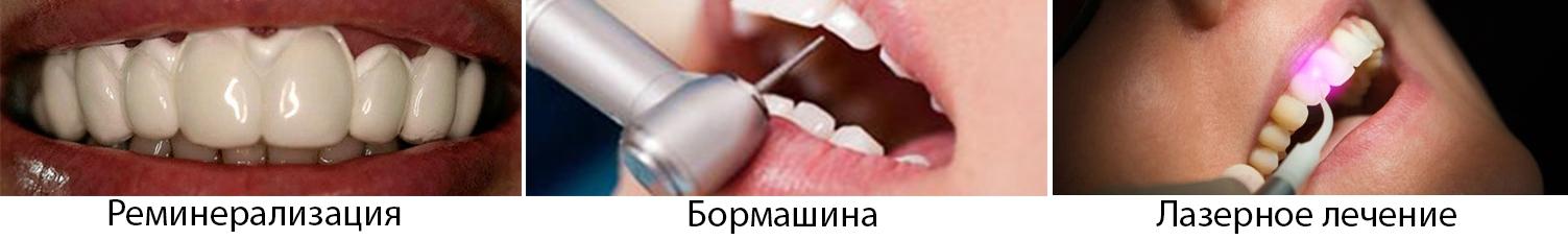 Лечение кариеса