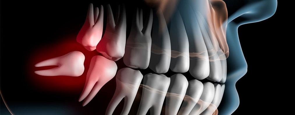 удаляется дистопированный зуб