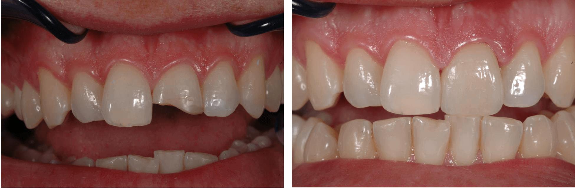 Пример художественной реставрации зубов