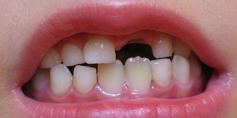 отсутствие молочного зуба